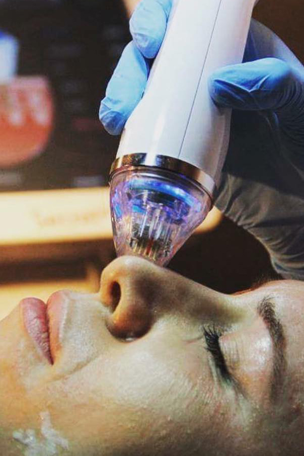 Tighten and Rejuvenate Skin with Fractional RF (Radiofrequency) Microneedling